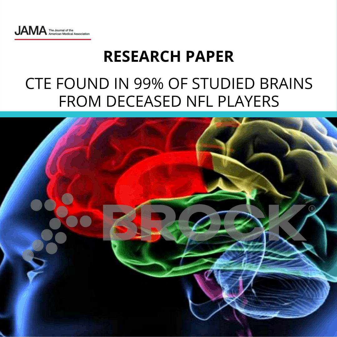 CTE found in 99% of studied brains from deceased NFL players